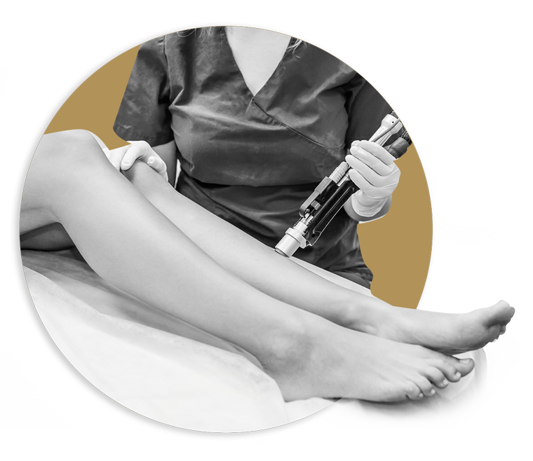 Photographie d'une femme épilant des jambes avec une machine laser
